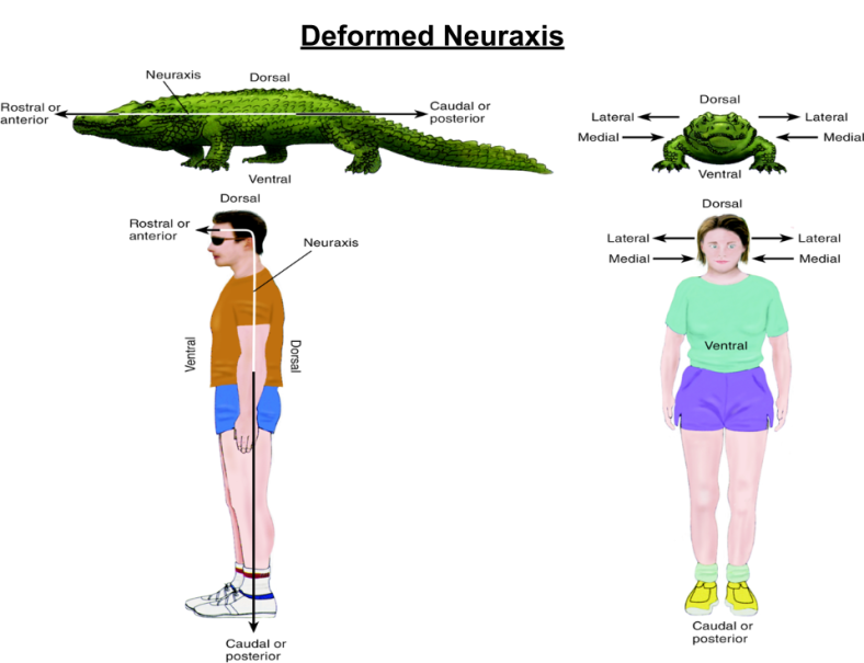 Brain Geometry- Deformed Neuraxis
