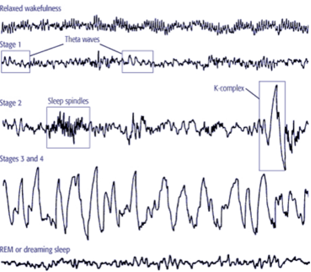 sleep-eeg-recording-simplified