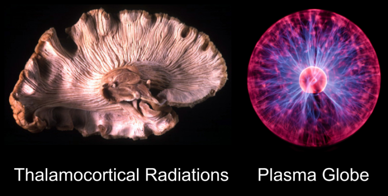 Brain- Plasma Globe analogy (2)